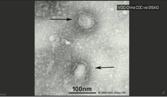 coronavirus gazo - 【新型コロナウイルス】2020年2月3日最新情報はどうなってる?